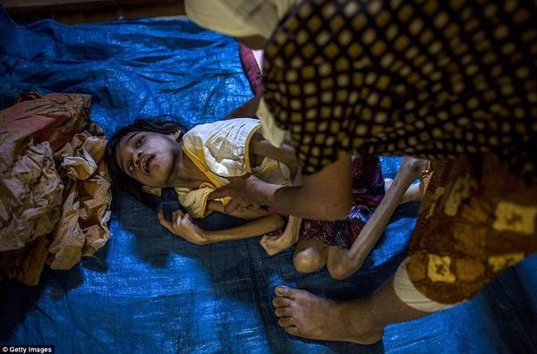 Jamila, 13 tuổi bị Down đang nằm trên một tấm bạt xanh trải tạm bợ dưới sàn nhà