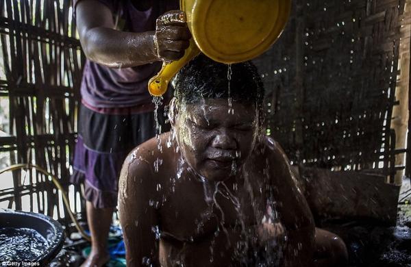 Andika, 17 tuổibị hội chứng Down đang được mẹ Supini giúp đỡ tắm tại làng Sidoarjo