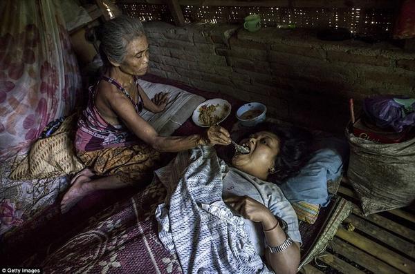 Sijum, 40 tuổi bị hội chứng Down đang nằm bất động trên giường chờ mẹ đút cho ăn