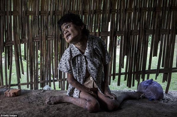 Sinem, mặc một chiếc áo rách và quần soóc,  chân đất ngồi trên sàn bụi bẩn của một căn phòng bẩn thỉu đen tối trong làng Krebet