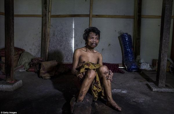 Saimun, 45 tuổi với chân xiềng xích đã được 20 năm nay vì bệnh tâm thần