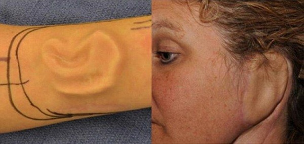 """Đây không phải là lần đầu tiên các bác sĩ đã cấy ghép hoặc gắn bộ phận cơ thể ở những nơi kỳ lạ. Các Mỹ tại Bệnh viện Johns Hopkins ở Maryland, các bác sỹ đã """"trồng"""" thành công tai của Sherrie Walter trên cánh tay của cô sau khi cô phát triển ung thư biểu bì mô tế bào năm 2008."""