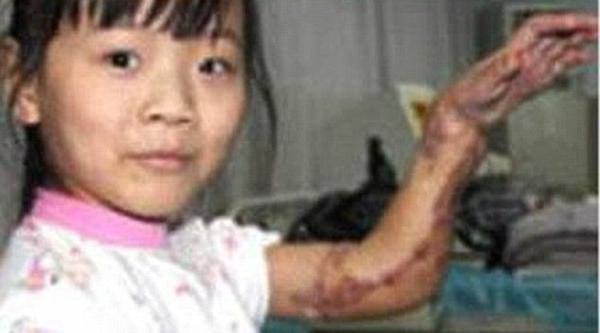 Và trong năm 2010 các bác sĩ Trung Quốc trồng tay một cô bé 9 tuổi Ming Li vào chân phải của cô vì nó đã quá hư hỏng nặng để đưa trở lại trên cánh tay của cô bé sau khi nó bị một chiếc máy kéo cán qua.