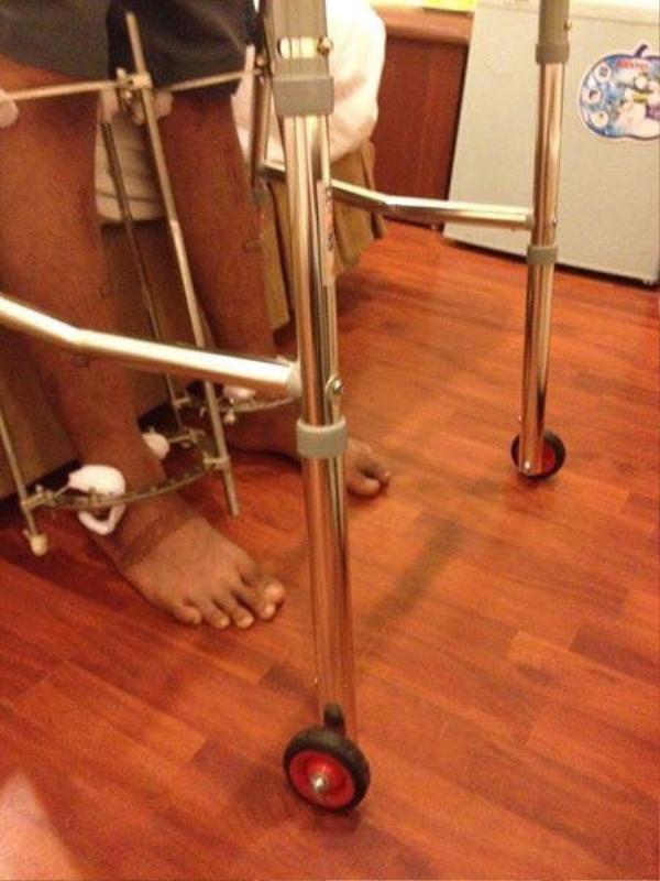 Chàng trai phẫu thuật kéo chân từ 1m67 lên 1m76: 'Vẫn cõng được người yêu như thường!' - ảnh 7