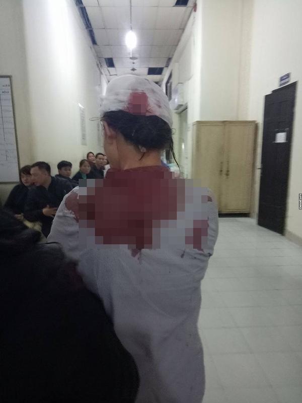 Hà Nội: Trả thù nhầm, 3 thanh niên hành hung dã man nữ sinh THPT