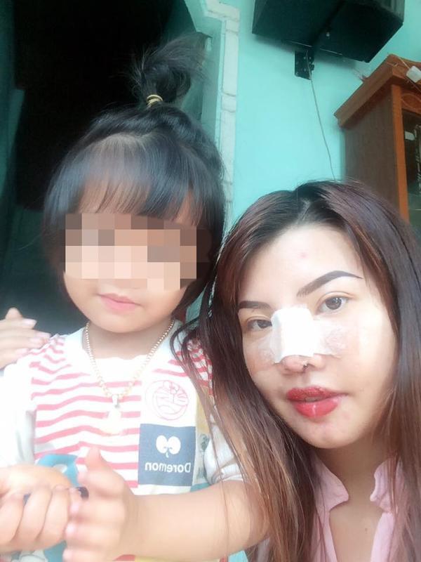 Diện mạo mới của bà mẹ đơn thân ở Đắk Nông quyết đi phẫu thuật vì quá xấu - Ảnh 7
