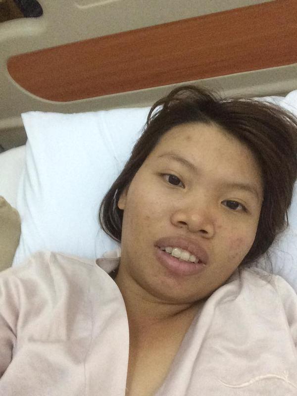 Diện mạo mới của bà mẹ đơn thân ở Đắk Nông quyết đi phẫu thuật vì quá xấu - Ảnh 3