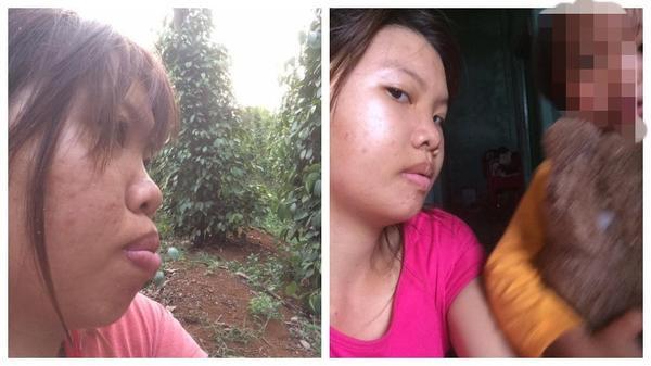 Diện mạo mới của bà mẹ đơn thân ở Đắk Nông quyết đi phẫu thuật vì quá xấu - Ảnh 4