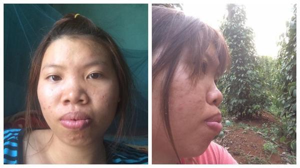 Diện mạo mới của bà mẹ đơn thân ở Đắk Nông quyết đi phẫu thuật vì quá xấu - Ảnh 2