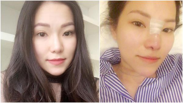 Lộ ảnh vợ cũ Lâm Vinh Hải phẫu thuật mũi và tiêm môi