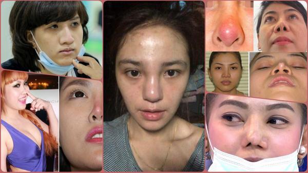 Phẫu thuật nâng mũi: bước ngoặc 'nâng tầm' nhan sắc hay bỏ tiền đánh đổi rủi ro