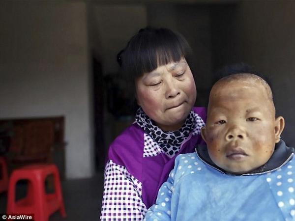 Người đàn ông 30 tuổi bị 'mắc kẹt' trong hình hài một đứa trẻ - Ảnh 2.